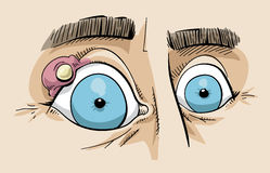 Sty on eyes of cartoon man. Close up of cyst or sty over blue eyes of cartoon man Stock Image