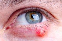 Stye hordeolum disease on eye of a caucasian female royalty free stock photo