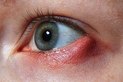 Free Stye On The Girl`s Eye, Inflammation Of The Hair Bulb On The Eyelids, Hordeolum, Bacterial Infection Of An Oil Grand Royalty Free Stock Images - 180392299