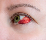 Subconjunctival Blutung - hyposphagma stockbild