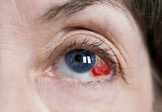 Subconjunctival Blutung im Auge lizenzfreies stockbild