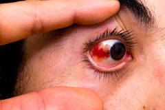 Subconjunctival hemorrhage Royalty Free Stock Images