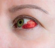 Subconjunctival hemorrhage - hyposphagma Stock Image