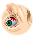 Subconjunctival hemorrhage Royalty Free Stock Photography
