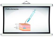 Subcutaneonsinjectie op menselijke huid Stock Foto