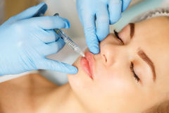Subcutaneous injection lips. Royalty Free Stock Photos
