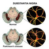 Substantia nigra in norm and in Parkinson`s disease. 3D illustration showing decrease of its volume. There is degeneration of dopaminergic neurons in the pars Royalty Free Stock Photo