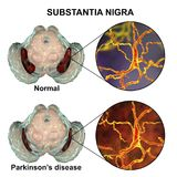 Substantia nigra in norm and in Parkinson`s disease. 3D illustration showing decrease of its volume. There is degeneration of dopaminergic neurons in the pars Royalty Free Stock Photography
