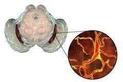 Substantia-Nigra in Parkinson-` s Krankheit vektor abbildung