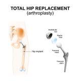 Substituição ou artroplastia anca total ilustração stock