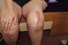 Substituição total do joelho, cirurgia do joelho Foto de Stock