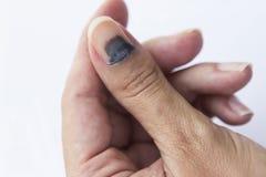Subungual гематома на ногте большого пальца руки стоковые изображения