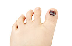 Subungual hematoma blue and black toe nail Royalty Free Stock Photo