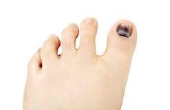 Subungual hematoma blue and black toe nail. Subungual hematoma on toe nail resulting in a black and blue nail Royalty Free Stock Photo
