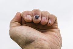 Subungual hematoma on the middle finger of the hand Stock Images