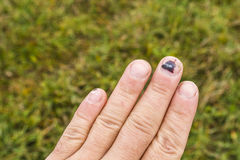 Subungual hematoma on the middle finger Stock Images