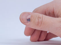 Subungual hematoma under nail. Subungual hematoma - collection of blood underneath fingernail (black toenail) medical condition. Aka runner or tennis toe Stock Image