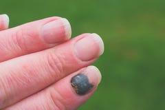 Subungual krwiak na palcu wskazującym obraz stock