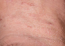 Sucha łupanie skóra w zimie Zdjęcie Royalty Free