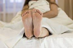Sucha skóra cieki Nożny traktowanie zdjęcie stock