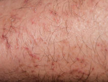 Sucha łupanie skóra w zimie Fotografia Stock