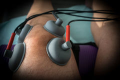 Suction cups applied to a knee in physiotherapy Stock Image