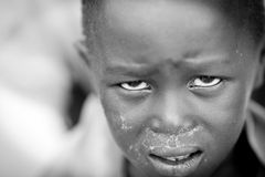 Suffering child, South Sudan Stock Photos