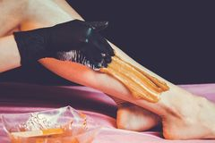 Sugaring epilation with liquate sugar at legs. On black background stock photo