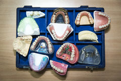 Suitcase full of prosthetic equipment. Artificial teeth Royalty Free Stock Photography