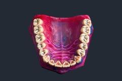 Sulcos dentais em um modelo dental vermelho fotografia de stock royalty free