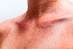 Sun-Allergie Lizenzfreies Stockfoto