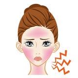 Sunburn Dermatitis  -Skincare Trouble.  Stock Photo