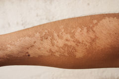 Sunburn Effects. Show of sunburn effects on the arms with white wall background Stock Images