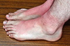 Sunburn on the feet Stock Photo