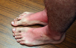 Sunburn feets Stock Photo