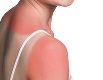 Sunburn female shoulder. Isolated on white background Royalty Free Stock Image