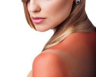Sunburn female shoulder Stock Photography