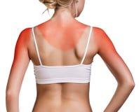 Sunburn kobiety ramię Zdjęcie Stock