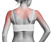 Sunburn kobiety ramię Zdjęcie Royalty Free