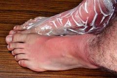 Sunburn legs. Treatment of sunburn cream cure kefir milk yogurt foam relief comfort heal Royalty Free Stock Images