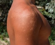 Sunburn on the skin of the shoulders. Exfoliation, skin peels off. Dangerous sun tan stock photo