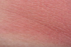 Sunburn skin Stock Photography