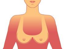 Sunburn. Symbolic medical illustration of the consequences of sunburn Royalty Free Stock Photography