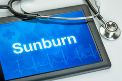 Sunburn. Tablet with the diagnosis Sunburn on the display Stock Photos