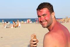 Sunburned человек используя лосьон suntan Стоковая Фотография RF