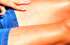 Sunburned legs. Sunburned legs on a sexy female beauty Royalty Free Stock Images