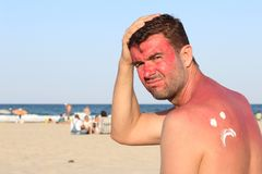 Sunburned mężczyzna z udziałami ból fotografia stock