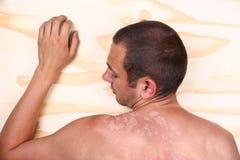 Sunburned male back Royalty Free Stock Photos