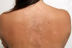 Sunburned, Peeling Female (3). A close-up of the back of a young brunette female, sunburned and peeling.  Completely unretouched Stock Photos