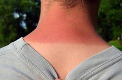 Sunburnet-Haut Stockbild